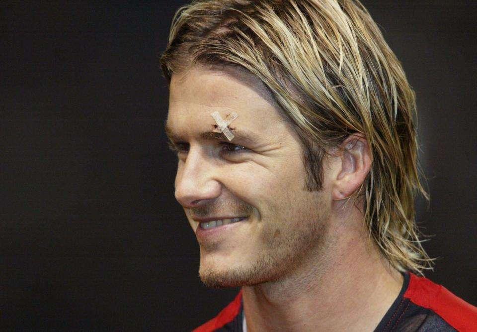 """Vết thương của Becks trên mặt sau khi """"lĩnh đủ"""" chiếc giày bay của Sir Alex"""