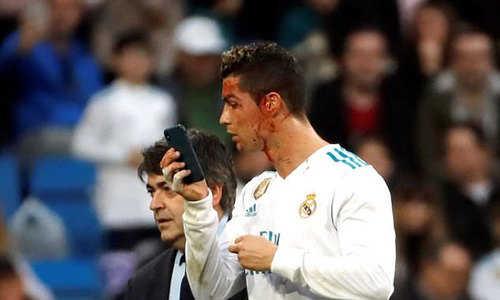 Ronaldo chảy máu mặt sau pha đánh đầu ghi bàn