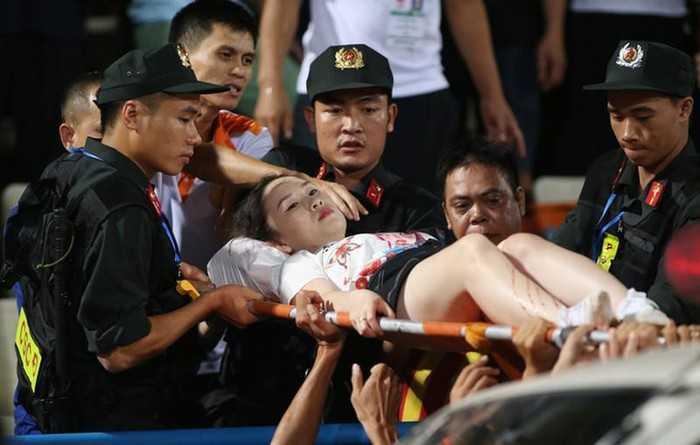 Pháo sáng xuất hiện trên SVĐ Hàng Đẫy khiến một CĐV nữ bị thương nặng là vết nhơ thế kỷ của bóng đá Việt Nam